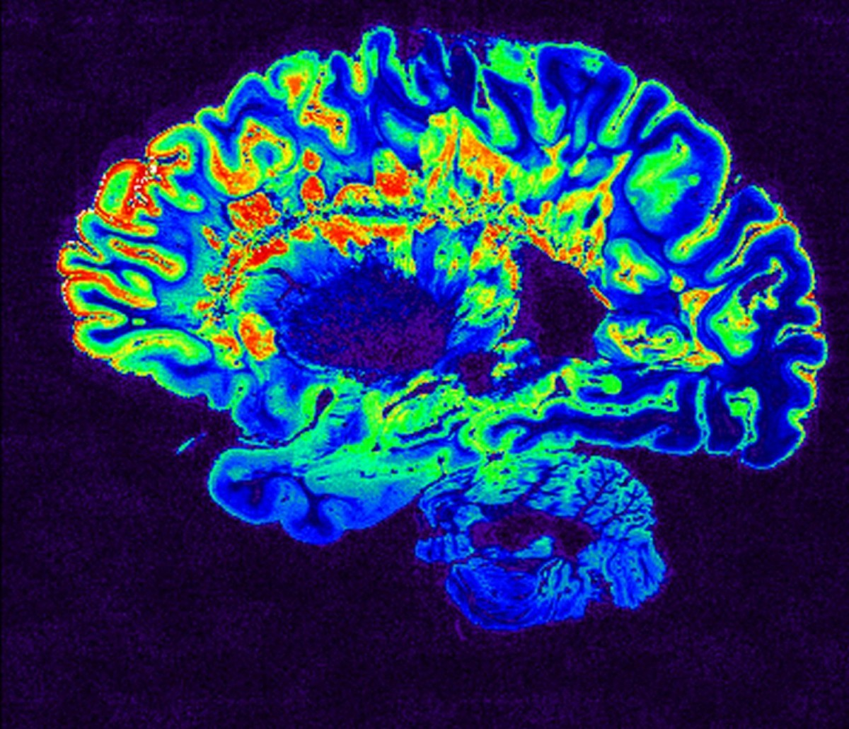 MS Brain Scan